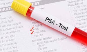Un nuevo análisis de sangre detecta tumores con un 87% de precisión