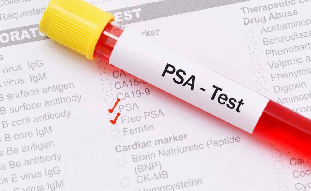 nuevo análisis de sangre detecta tumores